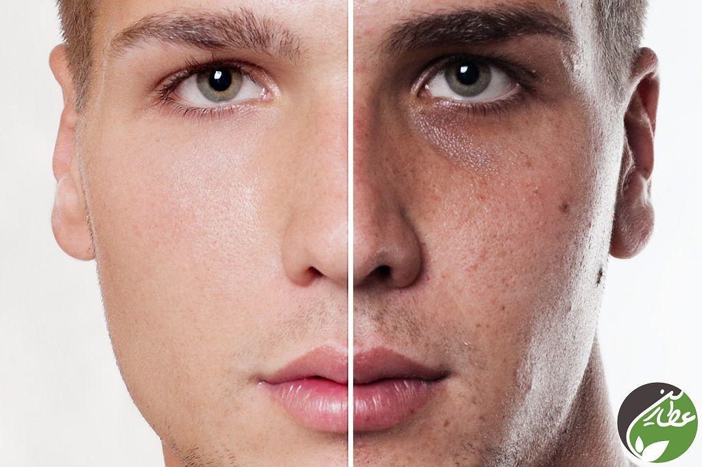 درمان جوش صورت با گیاهان دارویی