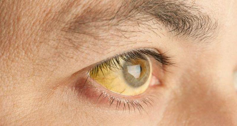 درمان زردی چشم به کمک طب سنتی