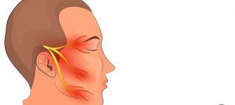 درمان درد اعصاب یا نورالژی به کمک طب سنتی