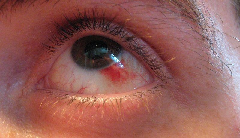 قرمزی یا خستگی چشم و درمان به کمک طب سنتی
