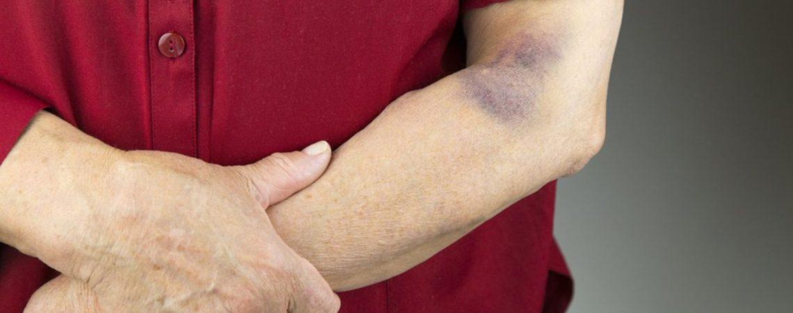 درمان خون مردگی زیر پوست به کمک طب سنتی