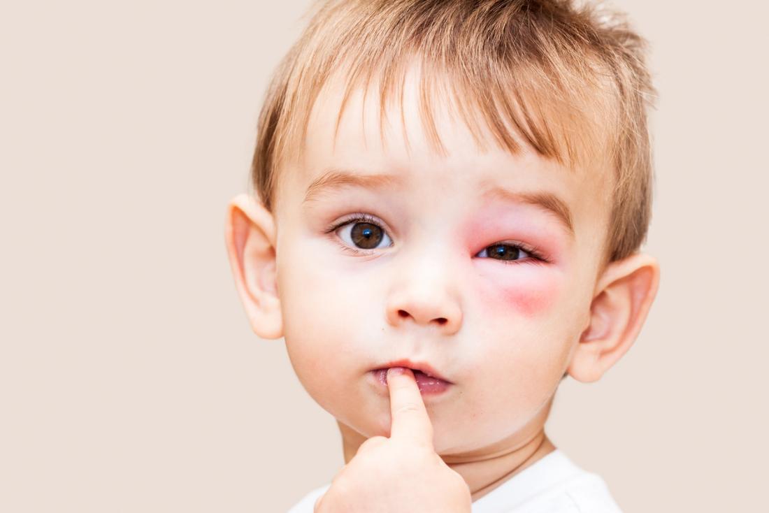 درمان ورم چشم به کمک طب سنتی