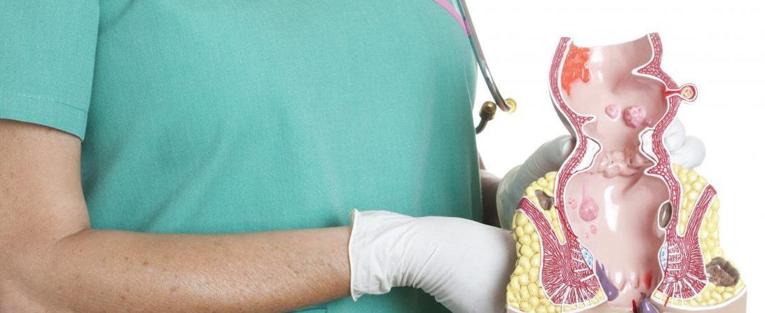 درمان بواسیر دکمه ای به کمک طب سنتی