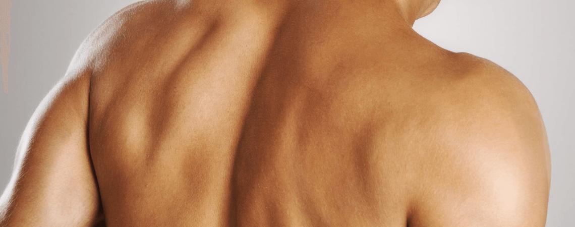 زیبا کردن پوست بدن به کمک طب سنتی