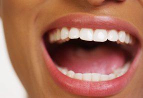 درمان سنتی جوش های دهان از سفلیس