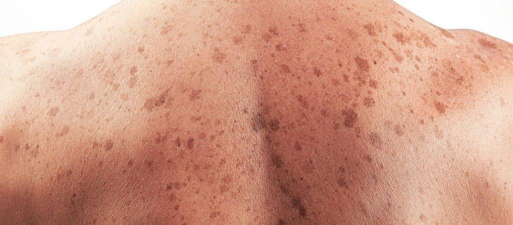 درمان خانگی لک های سیاه بدن