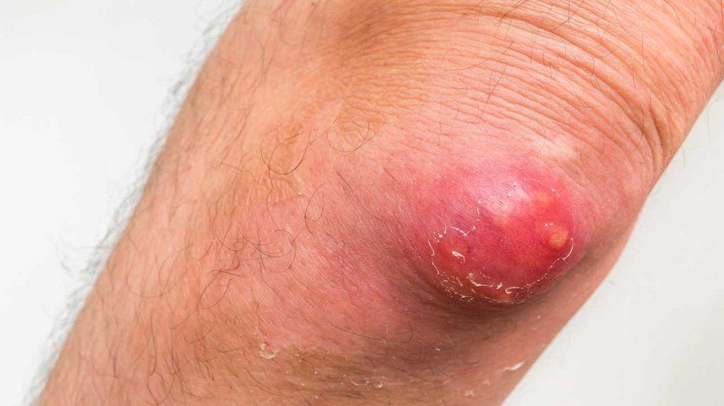 درمان بیماری کفگیرک به کمک طب سنتی