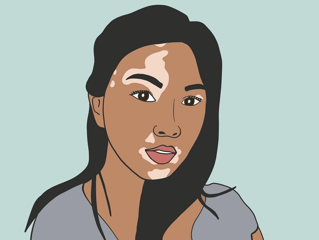درمان لکه های سفید پوست ( برص ) به کمک طب سنتی