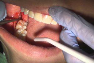 جلوگیری خانگی از خونریزی دندان کنده شده