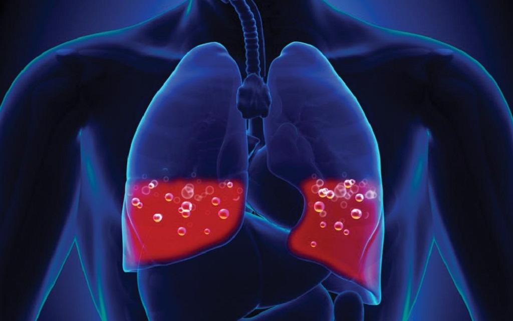 درمان خونریزی ریوی به کمک طب سنتی