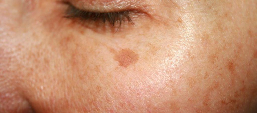 درمان سریع و گیاهی لکهای قهوهای پوست
