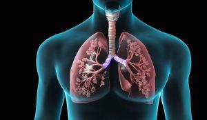 درمان عفونت ریه به کمک طب سنتی