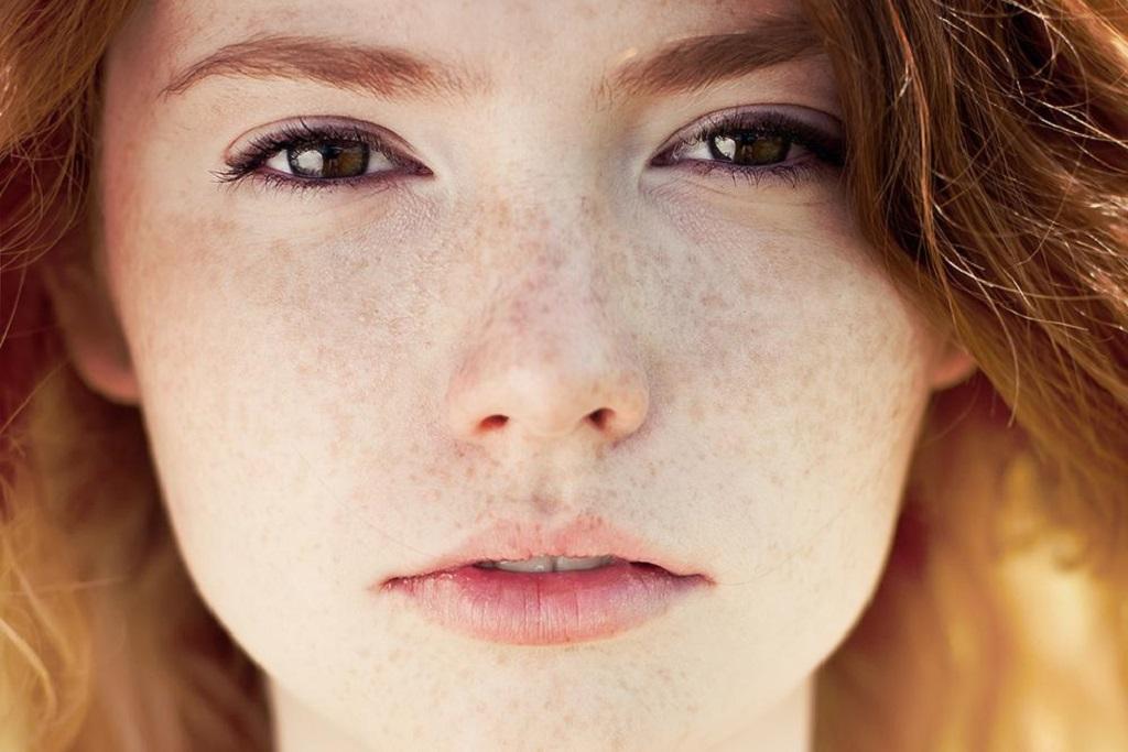درمان قطعی کک و مک پوست با طب سنتی