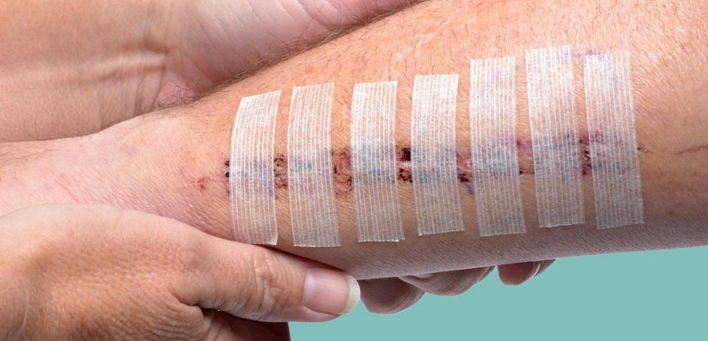 زخم های عفونی را گیاهی درمان کنید