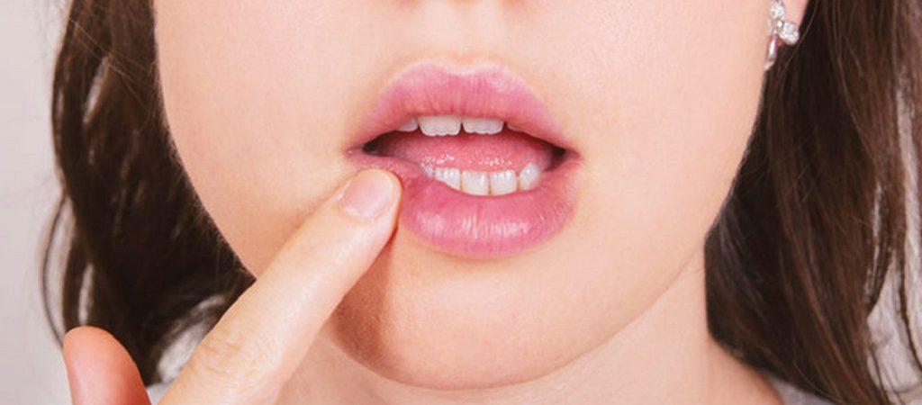 چند راه ساده برای درمان جوش دهان