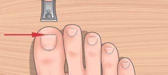علل فلج و سکته مغزی تا درمان ناخن فرورفته در گوشت