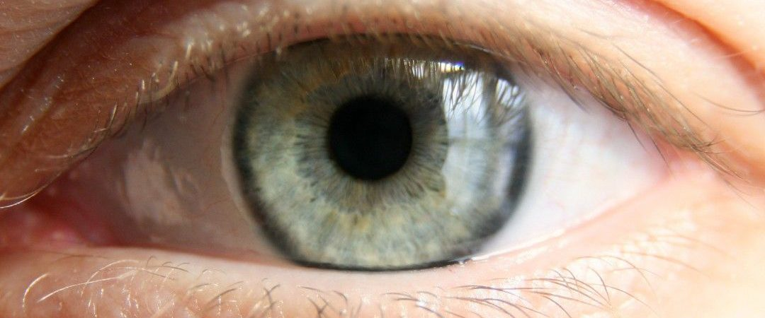 سه نسخه طب سنتی برای درمان پیر چشمی