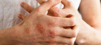 3 نسخه طب سنتی جهت درمان پسوریازیس