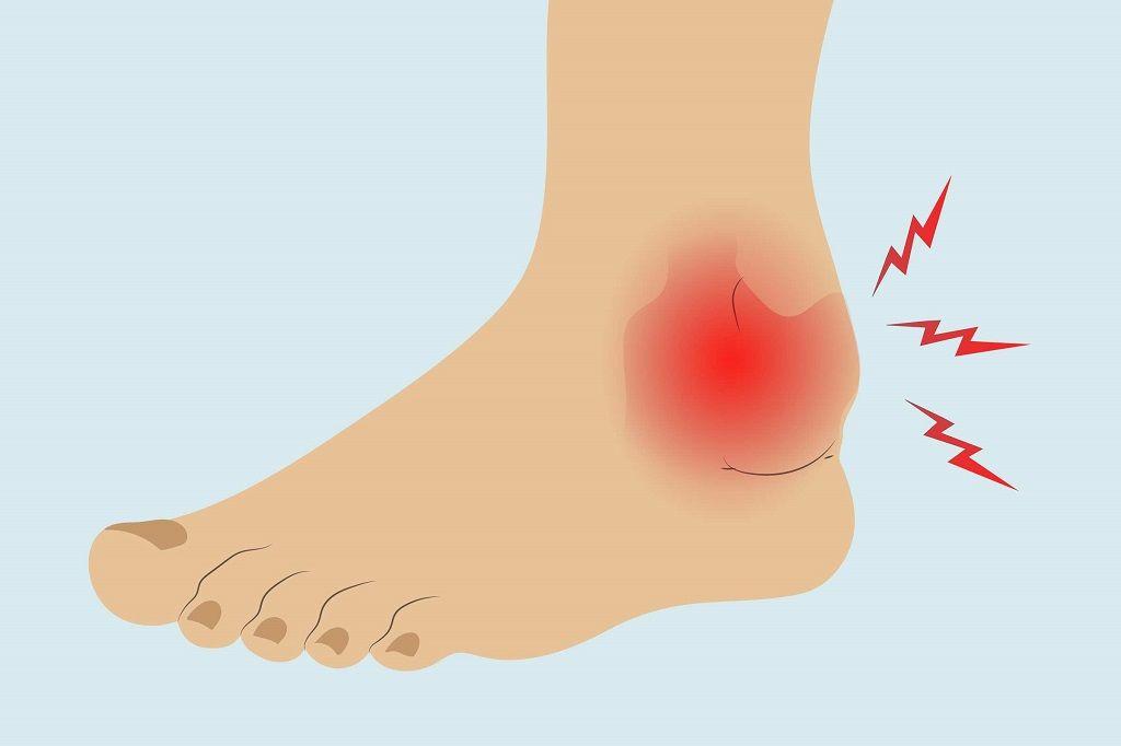 ترمیم شکستگی مچ پا به چه صورت می باشد
