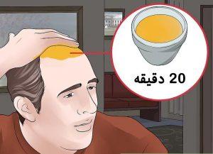 درمان ریزش مو با سیر