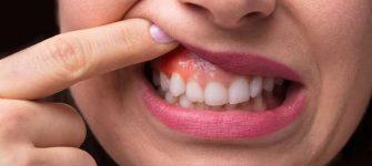 3 روش جهت درمان سنتی و گیاهی آبسه دندان