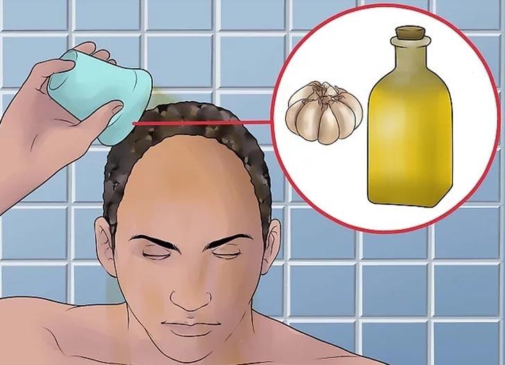 چگونه به طور طبیعی ریزش مو را با سیر درمان کنیم؟