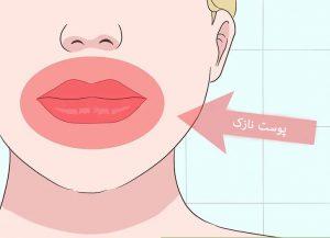 درمان پوست های نازک
