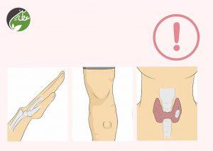 عوامل خطر لیپوم