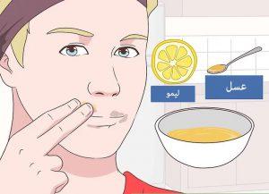 درمان لکه های اطراف دهان با عسل