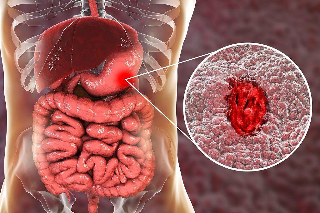 درمان خونریزی معده به کمک طب سنتی و گیاهان دارویی
