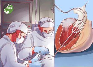 جراحی دریچه قلب