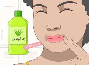 درمان لکه های اطراف دهان با آلوئه ورا