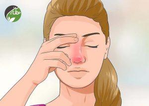 علت سردرد ورزشی