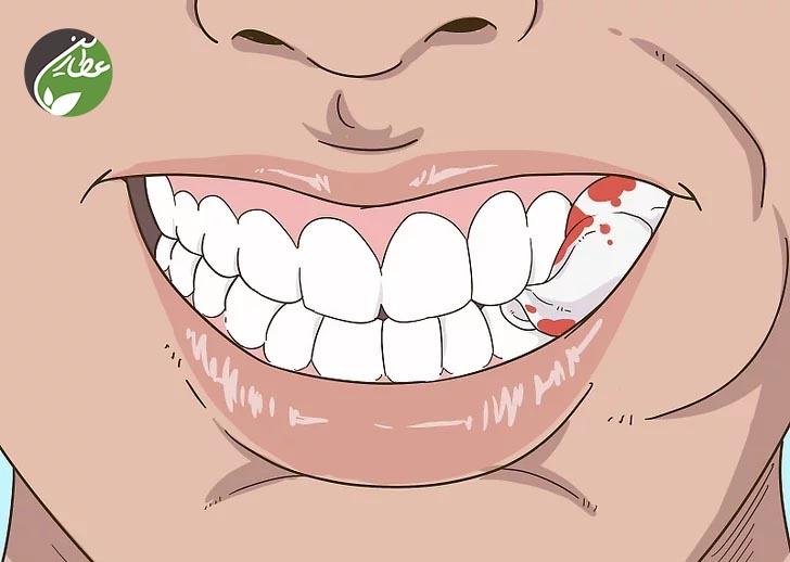 چگونه پس از جراحی دندان، از زخم ها مراقبت کنیم؟