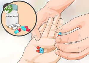 داروهای مسکن برای درمان سردرد