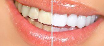 روش ساده و سریع برای سفید کردن دندان ها به صورت طبیعی