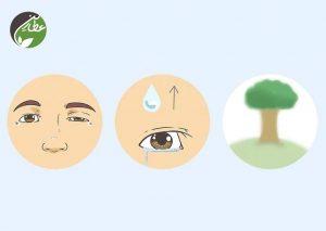 تشخیص علائم پتوز