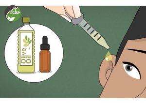درمان گرفتگی گوش با روغن