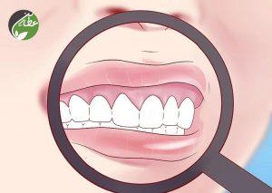 بررسی زخم های دهان