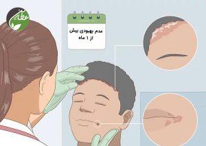 مراجعه به پزشک برای درمان زخم گوشه لب
