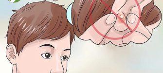 چطور با روشهای طبیعی جوش داخل گوش را درمان کنیم؟