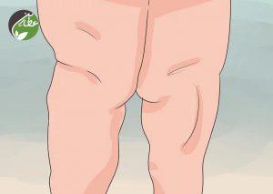 تورم پاها در لیپیدما