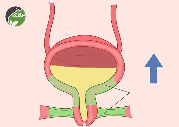 چطور ماهیچه های روده را به طور طبیعی تقویت کنیم؟