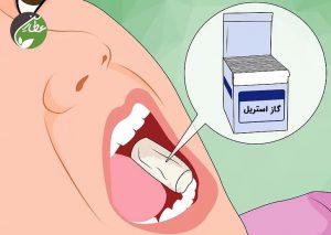 کنترل خونریزی دندان عقل
