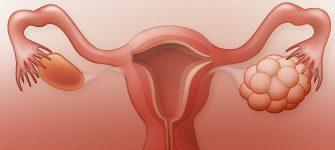 درمان خانگی سندرم تخمدان پلی کیستیک