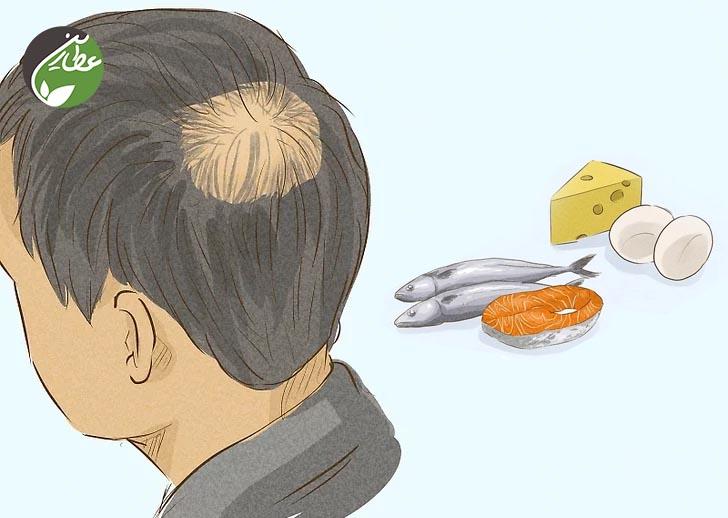 چگونه آقایان از ریزش مو جلوگیری کنند؟