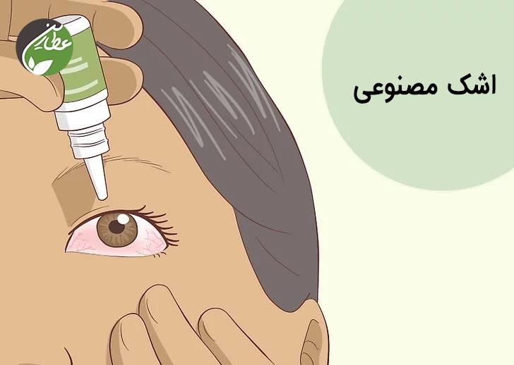 درمان حساسیت چشم با اشک مصنوعی